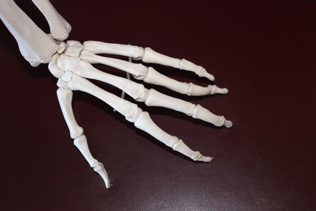 Ortopeda - lekarz od urazów?